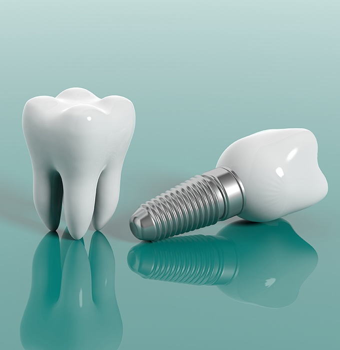 Animated tooth and dental implant supported replacement tooth