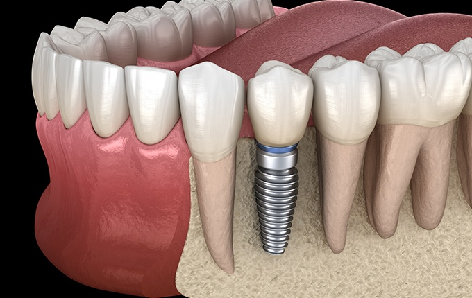 Animated smile with dental implant supported dental crown