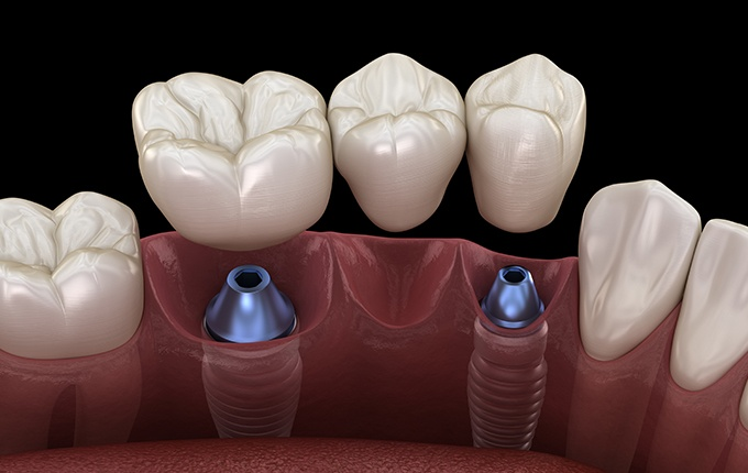 Animated smile with dental implant supported fixed bridge